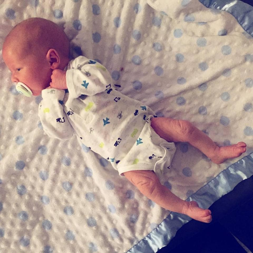 Ichthyosis {or fish-scale} disease and what it means for our little one