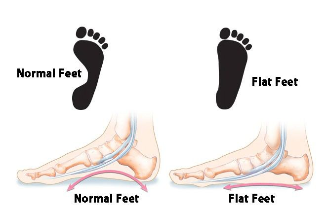 Flat Feet Diagram