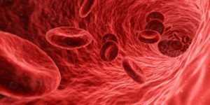 Cord Blood Treatments for Sickle Cell