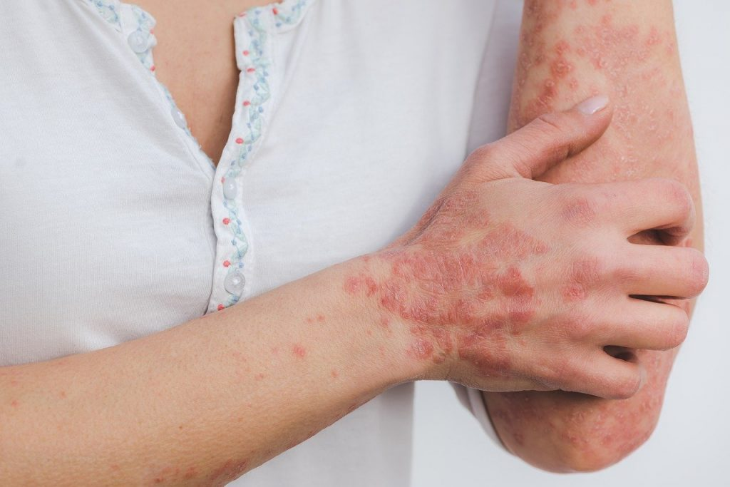 Psoriasis on arm and hand