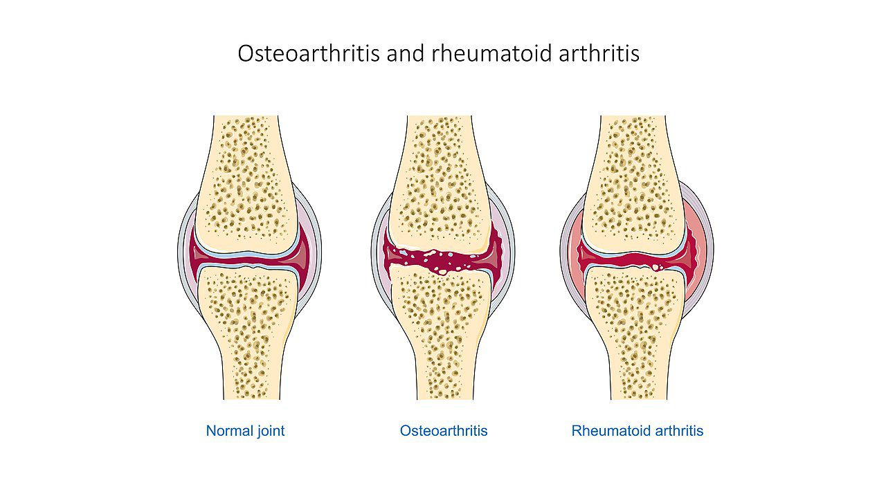 Tips for Managing Different Types of Arthritis